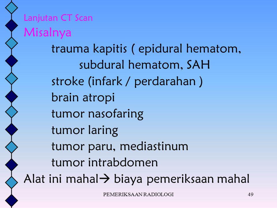 PEMERIKSAAN RADIOLOGI49 Lanjutan CT Scan Misalnya trauma kapitis ( epidural hematom, subdural hematom, SAH stroke (infark / perdarahan ) brain atropi