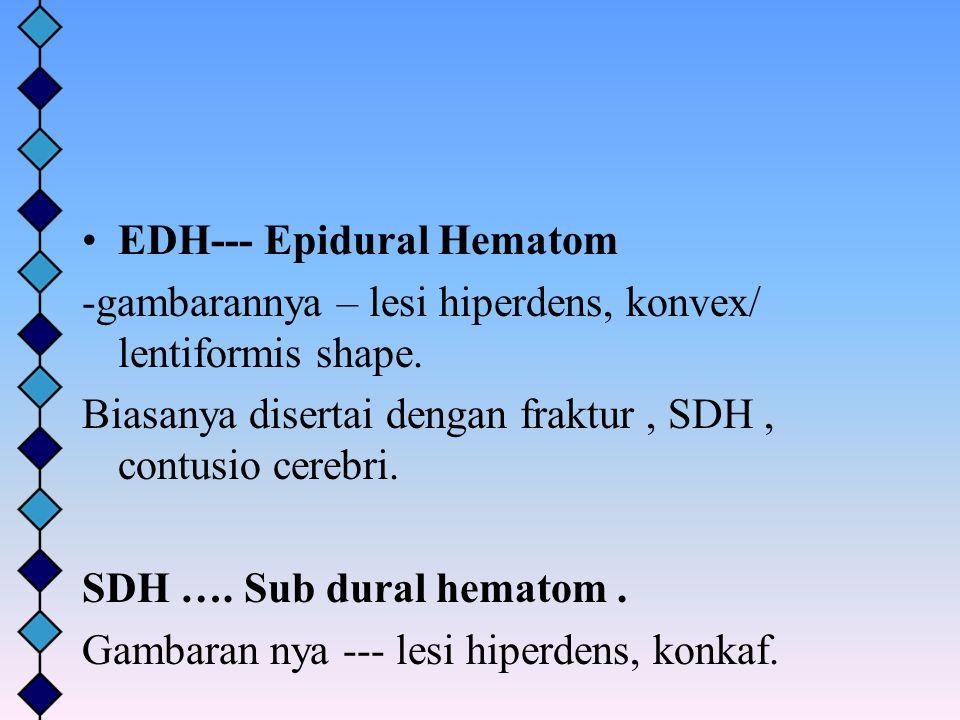 EDH--- Epidural Hematom -gambarannya – lesi hiperdens, konvex/ lentiformis shape. Biasanya disertai dengan fraktur, SDH, contusio cerebri. SDH …. Sub