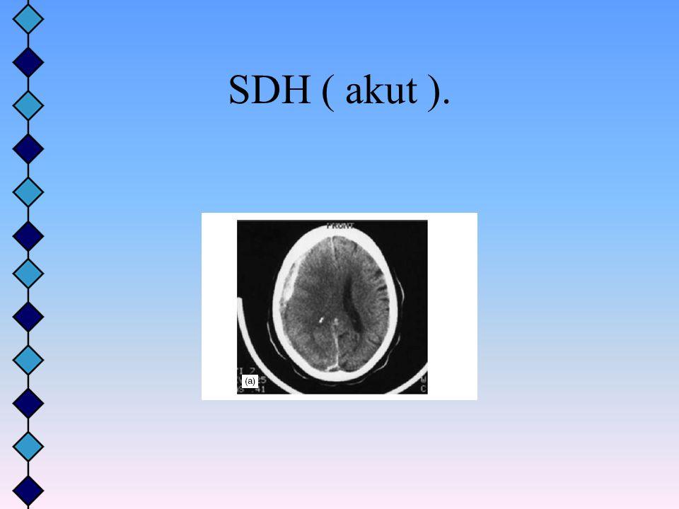 SDH ( akut ).