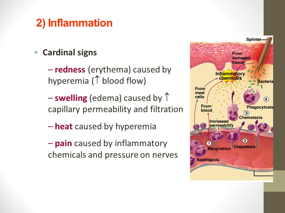 2) Inflammation Cardinal signs – redness (erythema) caused by hyperemia (  blood flow) – swelling (edema) caused by  capillary permeability and filt