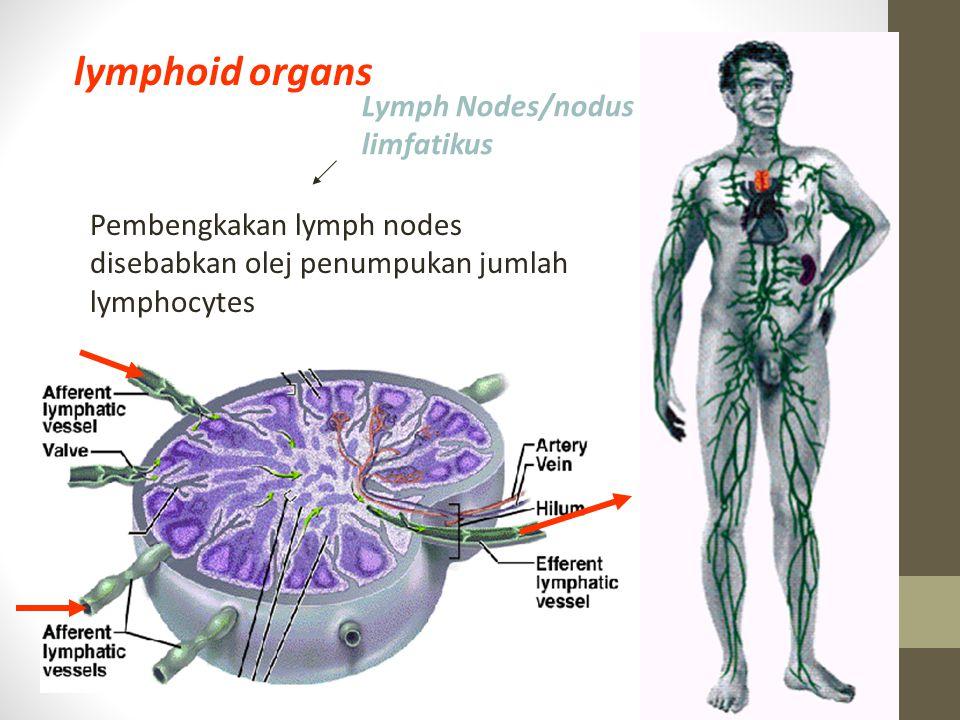 Lymph Nodes/nodus limfatikus lymphoid organs - Macrophages and lymphocytes attack microorganisms Pembengkakan lymph nodes disebabkan olej penumpukan j