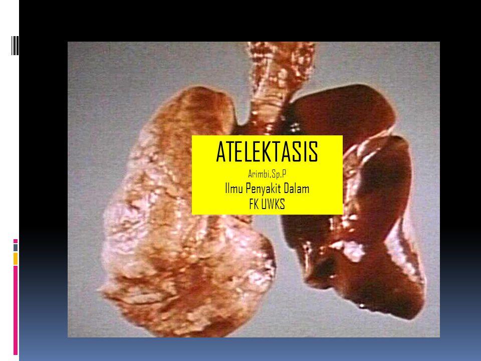 Definisi Atelektasis Keadaan alveoli paru sebagian / seluruhnya tidak terisi udara / kolaps, akibat hambatan aliran udara yang melewati bronkhus dan percabangannya.