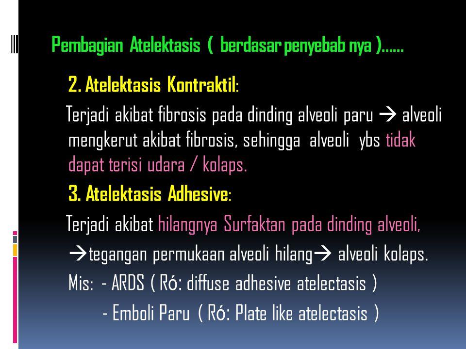 Pembagian Atelektasis ( berdasar penyebab nya )…… 2. Atelektasis Kontraktil : Terjadi akibat fibrosis pada dinding alveoli paru  alveoli mengkerut ak