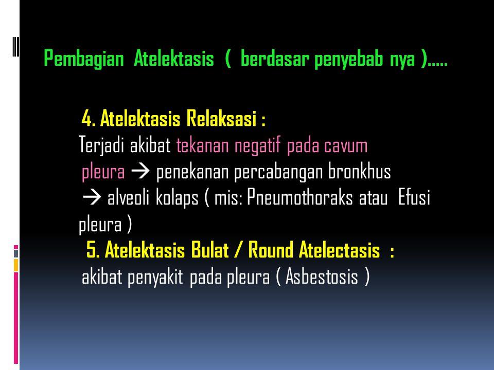 4. Atelektasis Relaksasi : Terjadi akibat tekanan negatif pada cavum pleura  penekanan percabangan bronkhus  alveoli kolaps ( mis: Pneumothoraks ata