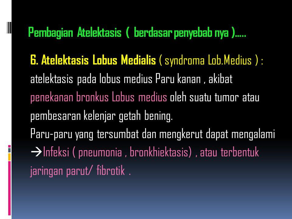 6. Atelektasis Lobus Medialis ( syndroma Lob.Medius ) : atelektasis pada lobus medius Paru kanan, akibat penekanan bronkus Lobus medius oleh suatu tum