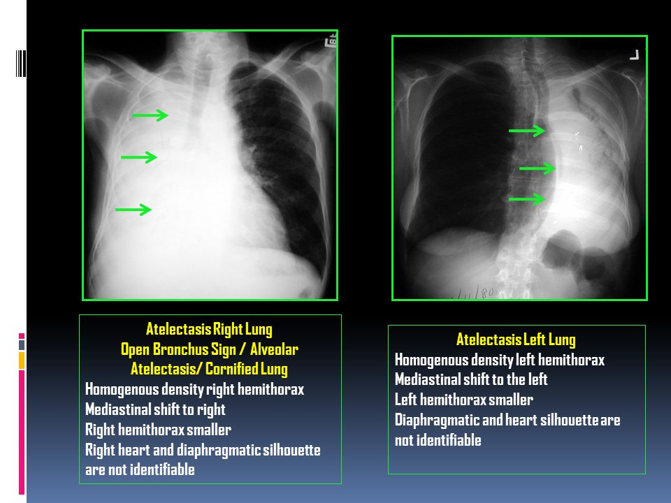 Atelectasis Right Lung Open Bronchus Sign / Alveolar Atelectasis/ Cornified Lung Homogenous density right hemithorax Mediastinal shift to right Right hemithorax smaller Right heart and diaphragmatic silhouette are not identifiable Atelectasis Left Lung Homogenous density left hemithorax Mediastinal shift to the left Left hemithorax smaller Diaphragmatic and heart silhouette are not identifiable