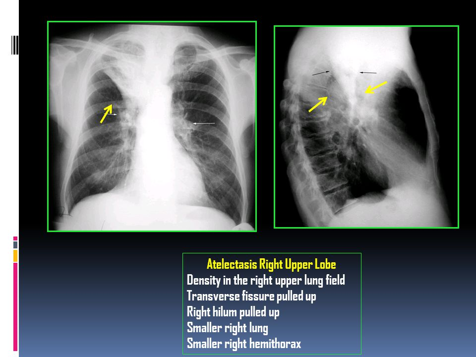 Atelectasis Right Upper Lobe Density in the right upper lung field Transverse fissure pulled up Right hilum pulled up Smaller right lung Smaller right hemithorax
