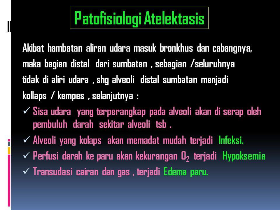 Patofisiologi Atelektasis Akibat hambatan aliran udara masuk bronkhus dan cabangnya, maka bagian distal dari sumbatan, sebagian /seluruhnya tidak di a