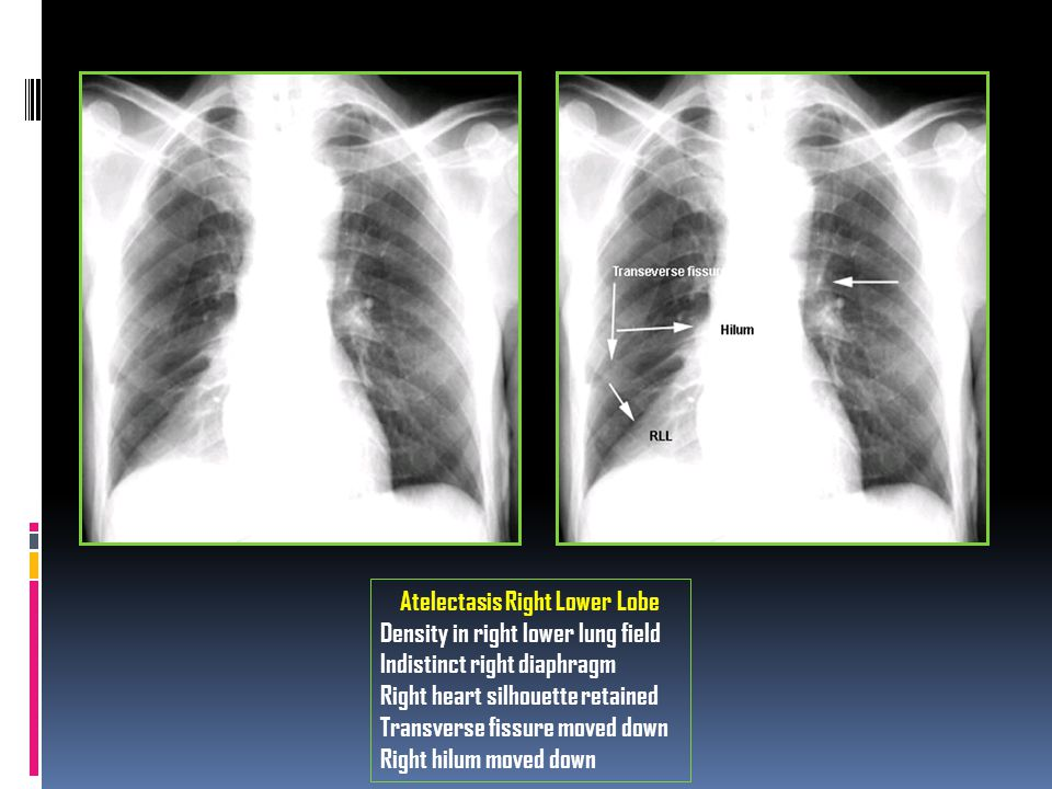 Atelectasis Right Lower Lobe Density in right lower lung field Indistinct right diaphragm Right heart silhouette retained Transverse fissure moved dow