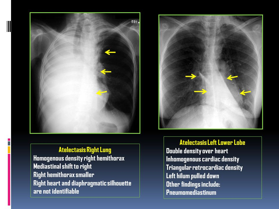 Atelectasis Right Lung Homogenous density right hemithorax Mediastinal shift to right Right hemithorax smaller Right heart and diaphragmatic silhouett