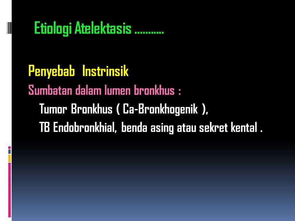 Penyebab Instrinsik Sumbatan dalam lumen bronkhus : Tumor Bronkhus ( Ca-Bronkhogenik ), TB Endobronkhial, benda asing atau sekret kental. Etiologi Ate