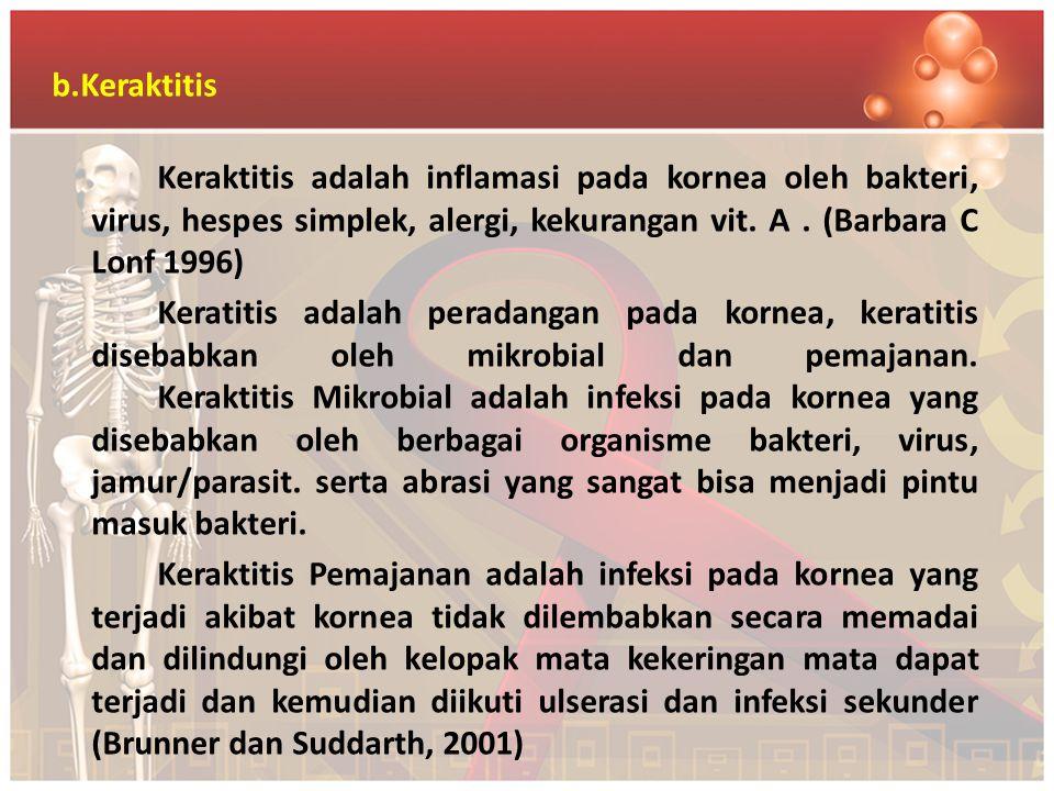 b.Keraktitis Keraktitis adalah inflamasi pada kornea oleh bakteri, virus, hespes simplek, alergi, kekurangan vit. A. (Barbara C Lonf 1996) Keratitis a
