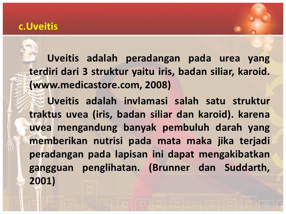c.Uveitis Uveitis adalah peradangan pada urea yang terdiri dari 3 struktur yaitu iris, badan siliar, karoid. (www.medicastore.com, 2008) Uveitis adala