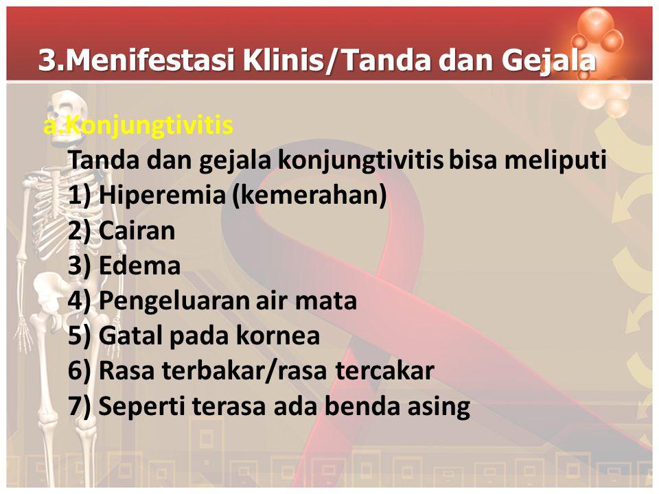 3.Menifestasi Klinis/Tanda dan Gejala a.Konjungtivitis Tanda dan gejala konjungtivitis bisa meliputi 1) Hiperemia (kemerahan) 2) Cairan 3) Edema 4) Pe