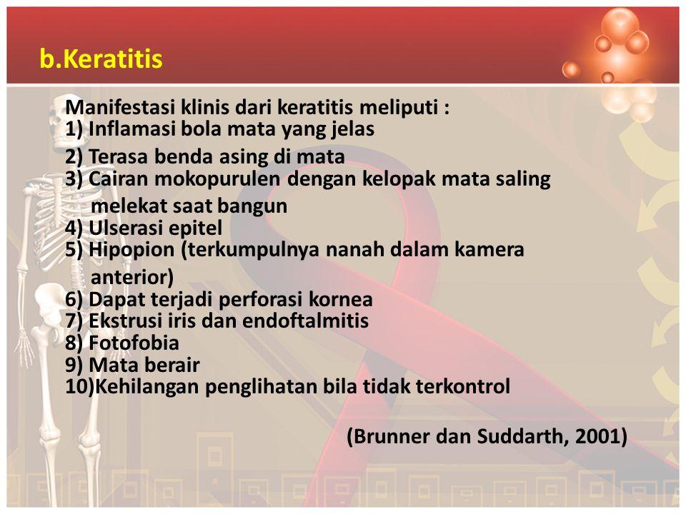 b.Keratitis Manifestasi klinis dari keratitis meliputi : 1) Inflamasi bola mata yang jelas 2) Terasa benda asing di mata 3) Cairan mokopurulen dengan
