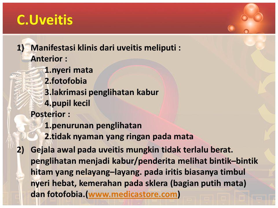 C.Uveitis 1)Manifestasi klinis dari uveitis meliputi : Anterior : 1.nyeri mata 2.fotofobia 3.lakrimasi penglihatan kabur 4.pupil kecil Posterior : 1.p