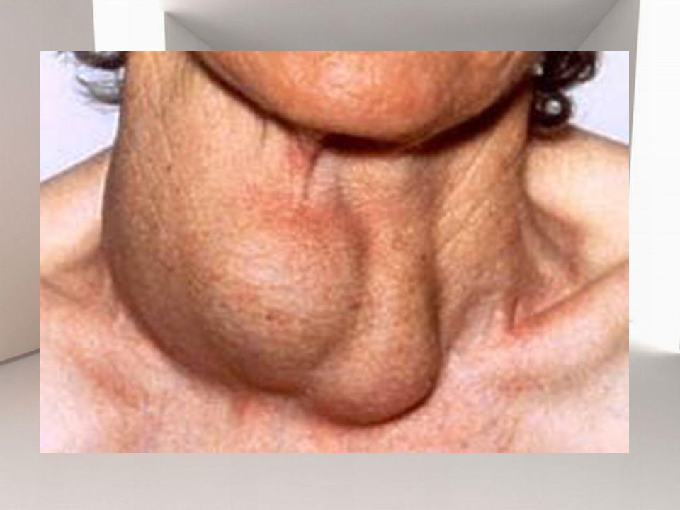 6.Pemeriksaan sidik tiroid.