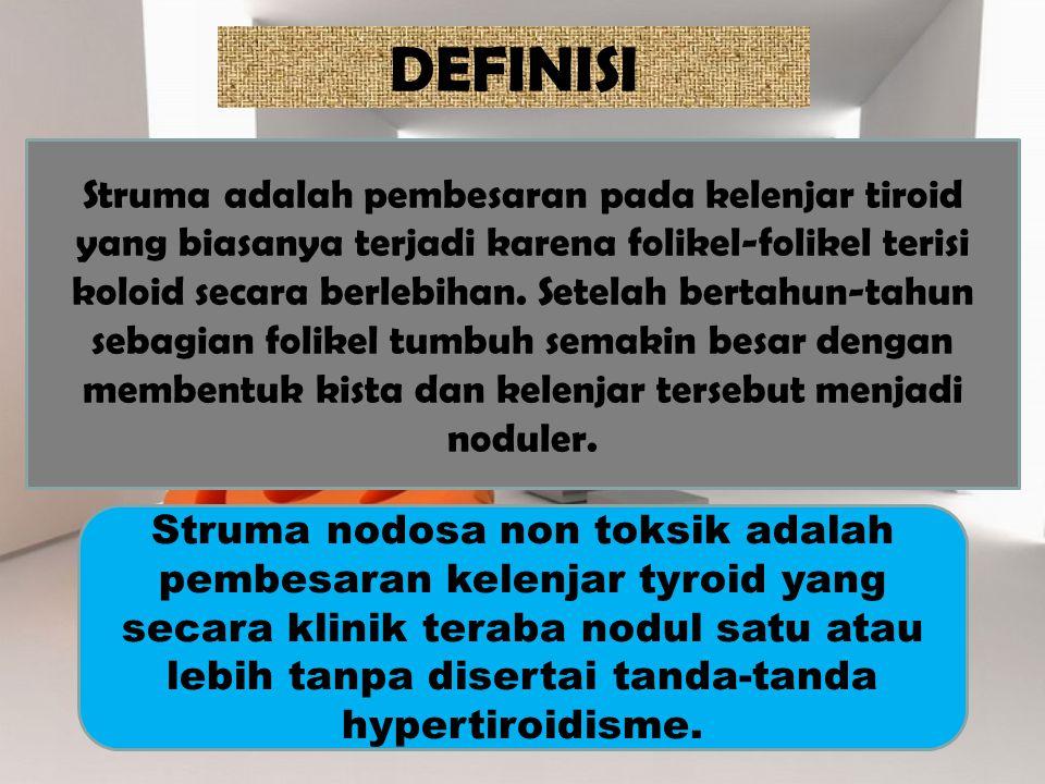 DEFINISI Struma adalah pembesaran pada kelenjar tiroid yang biasanya terjadi karena folikel-folikel terisi koloid secara berlebihan. Setelah bertahun-