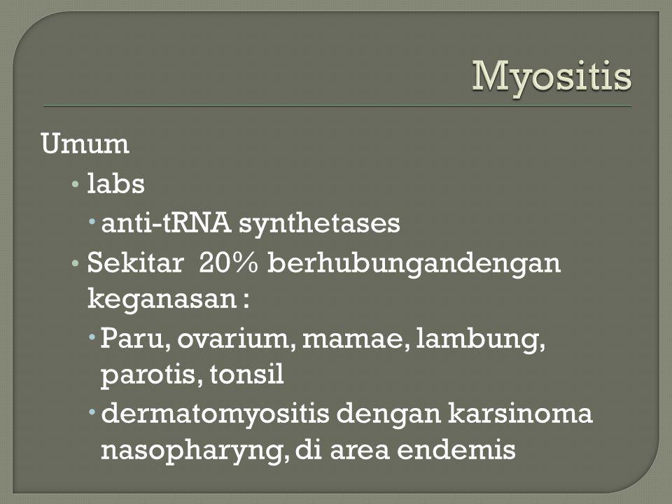 Umum labs  anti-tRNA synthetases Sekitar 20% berhubungandengan keganasan :  Paru, ovarium, mamae, lambung, parotis, tonsil  dermatomyositis dengan karsinoma nasopharyng, di area endemis