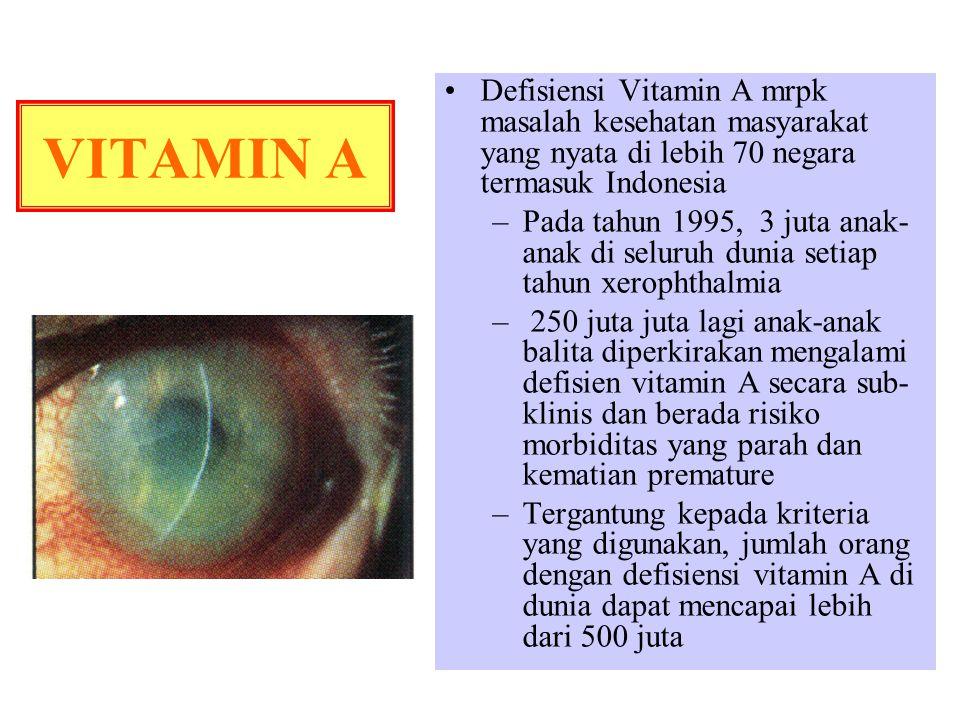 Defisiensi Vitamin A mrpk masalah kesehatan masyarakat yang nyata di lebih 70 negara termasuk Indonesia –Pada tahun 1995, 3 juta anak- anak di seluruh dunia setiap tahun xerophthalmia – 250 juta juta lagi anak-anak balita diperkirakan mengalami defisien vitamin A secara sub- klinis dan berada risiko morbiditas yang parah dan kematian premature –Tergantung kepada kriteria yang digunakan, jumlah orang dengan defisiensi vitamin A di dunia dapat mencapai lebih dari 500 juta VITAMIN A