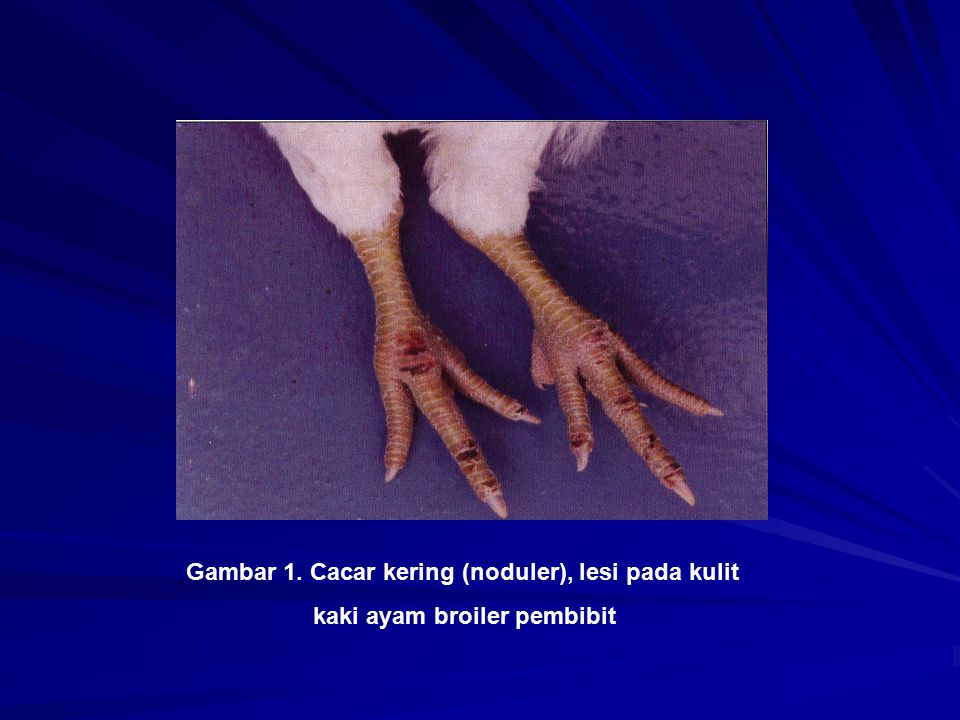 Gambar 1. Cacar kering (noduler), lesi pada kulit kaki ayam broiler pembibit