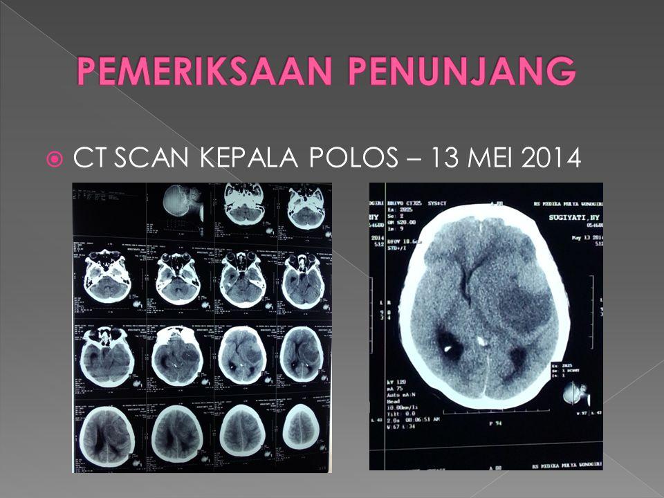  CT SCAN KONTRAS KEPALA KONTRAS – 17 MEI 2014  Tidak tampak penumpukan darah dalam subgaleal  Calvaria intak  Sulcus dan gyri dibagian luar lesi tidak tampak kelainan  Tampak lesi solid (39,5 Hu) batas tidak tegas, tepi irreguler dengan perifokal oedem disekitarnya terukur 52,2x61,7x55,2 mm di intraaxial supratentorial lobus temporalis kiri,pada post kontras tampak inhomogen contrast enhancement  Tampak midline shifting ke kanan sejauh 13 mm  Sistem ventrikel dan sisterna tampak terdesak ke kanan  Pons, cerebelum dan cerrebelopontin tampak dalam batas normal  Orbita, sinus paranasalis dan mastoid kanan kiri tidak tampak kelainan