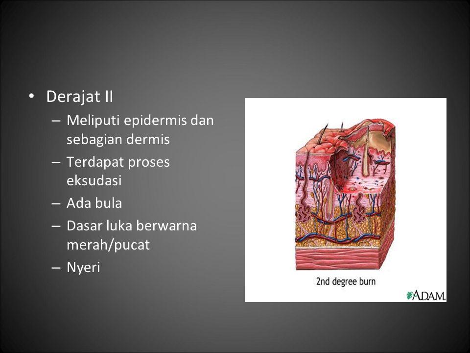 Derajat II – Meliputi epidermis dan sebagian dermis – Terdapat proses eksudasi – Ada bula – Dasar luka berwarna merah/pucat – Nyeri