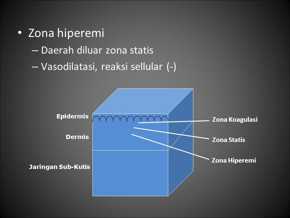 Zona hiperemi – Daerah diluar zona statis – Vasodilatasi, reaksi sellular (-) Epidermis Dermis Jaringan Sub-Kutis Zona Koagulasi Zona Statis Zona Hipe