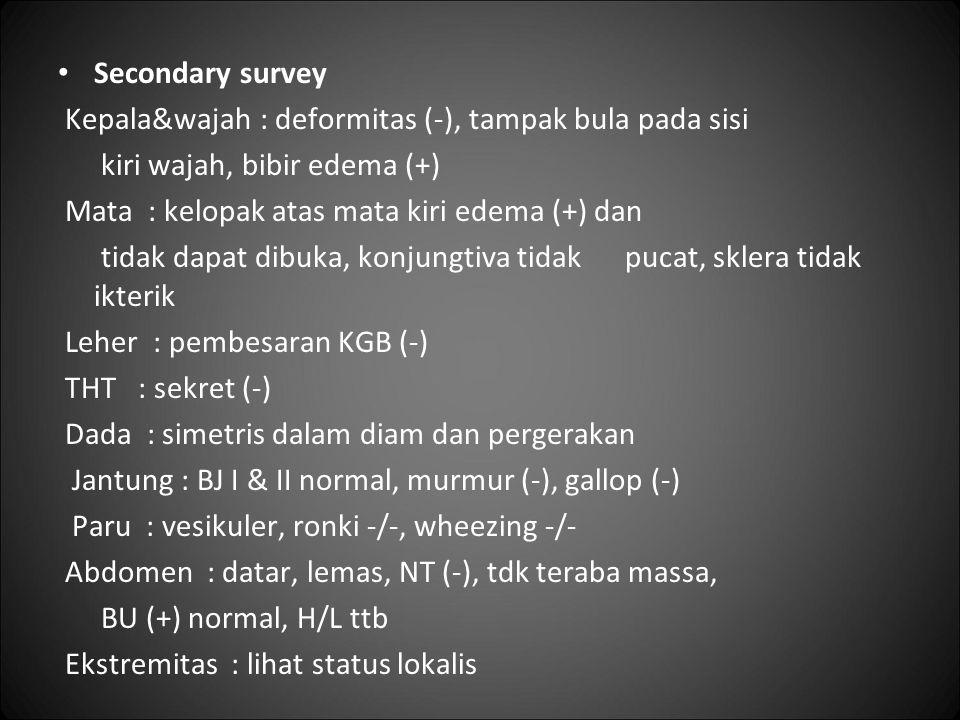 Secondary survey Kepala&wajah : deformitas (-), tampak bula pada sisi kiri wajah, bibir edema (+) Mata : kelopak atas mata kiri edema (+) dan tidak da