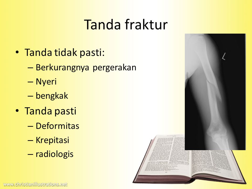 Tanda tidak pasti: – Berkurangnya pergerakan – Nyeri – bengkak Tanda pasti – Deformitas – Krepitasi – radiologis Tanda fraktur