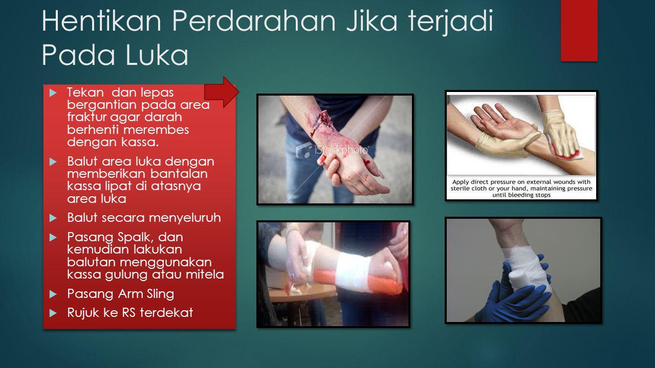 Hentikan Perdarahan Jika terjadi Pada Luka  Tekan dan lepas bergantian pada area fraktur agar darah berhenti merembes dengan kassa.  Balut area luka