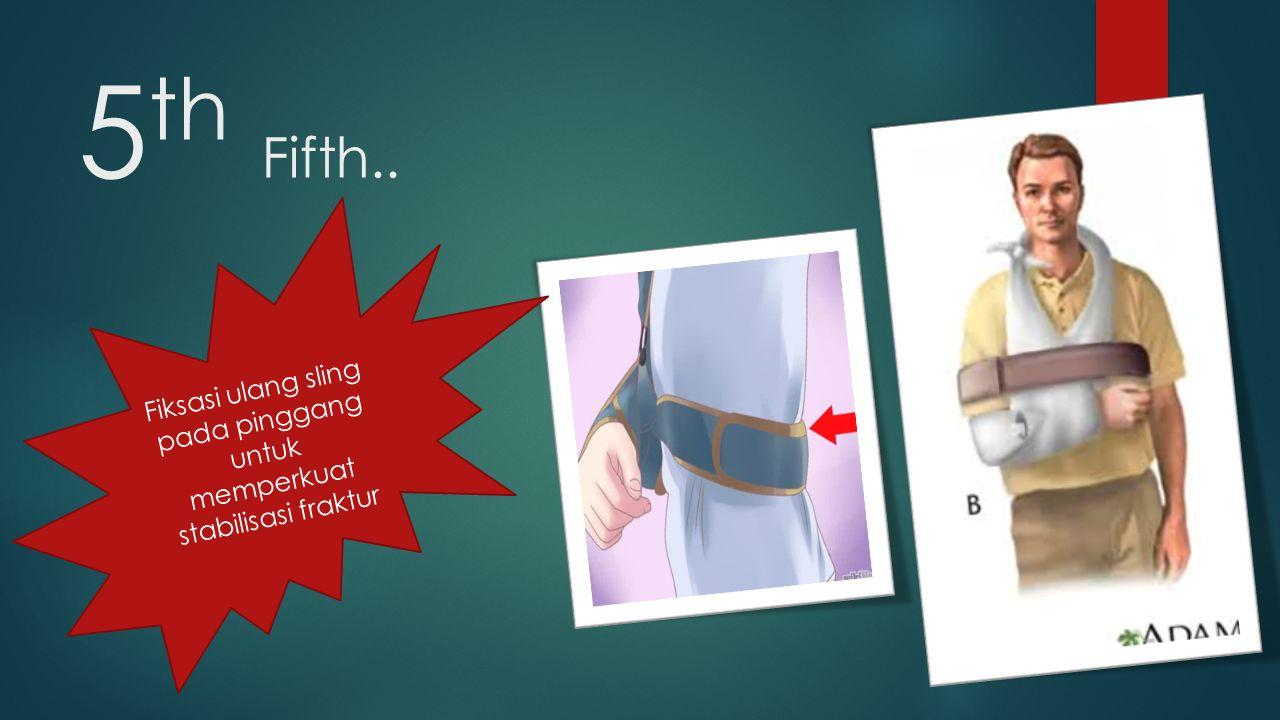 5 th Fifth.. Fiksasi ulang sling pada pinggang untuk memperkuat stabilisasi fraktur