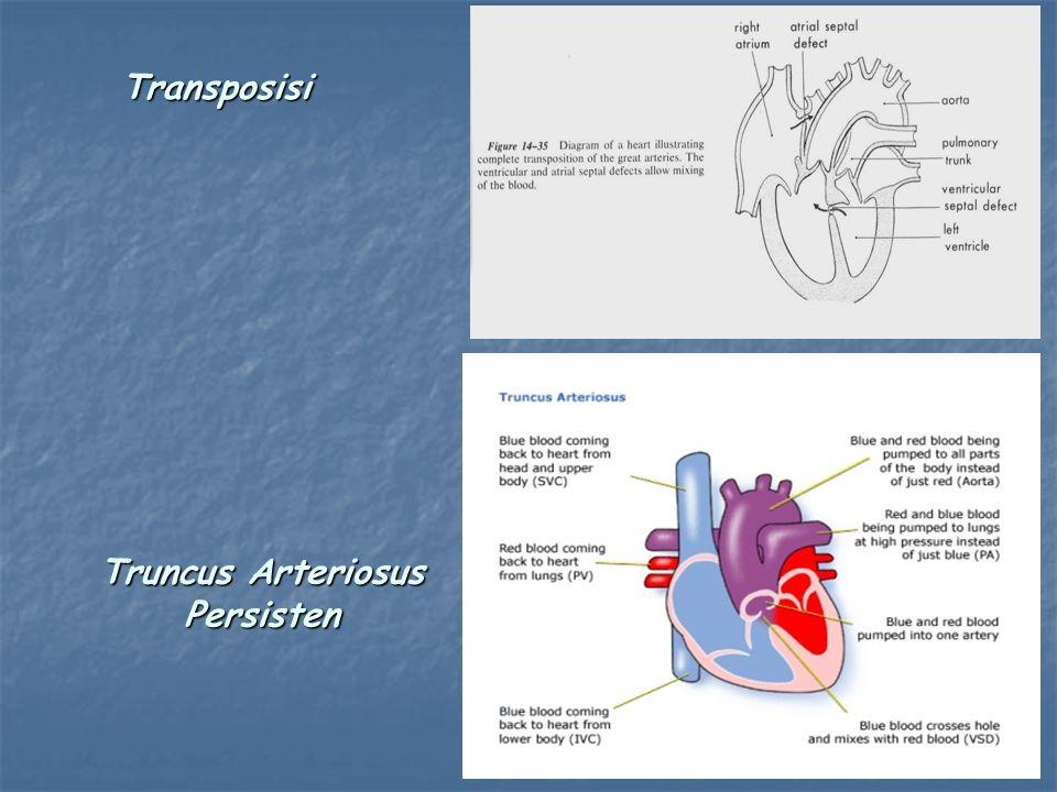 Transposisi Truncus Arteriosus Persisten