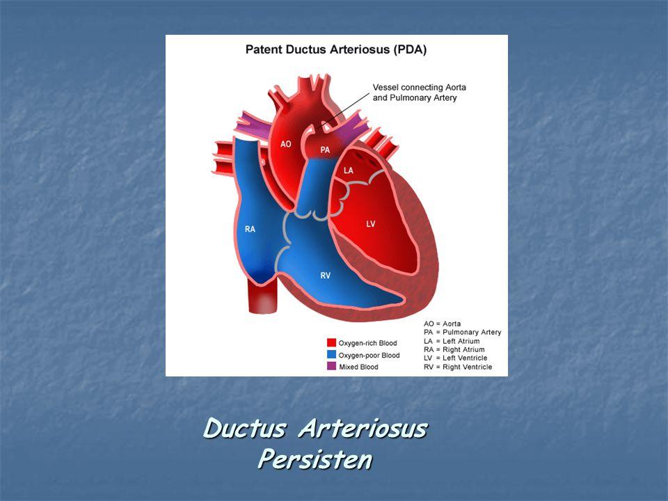 Ductus Arteriosus Persisten