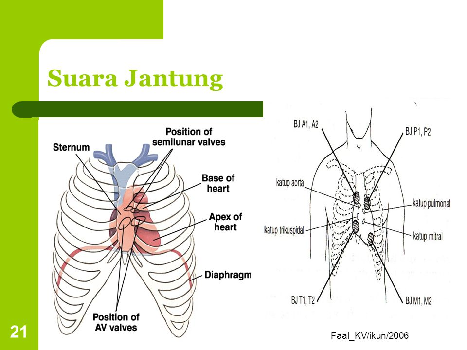 Faal_KV/ikun/2006 20 Suara Jantung S1 (lub) terjadi saat penutupan katup AV karena vibrasi pd dinding ventrikel & arteri; dimulai pd awal kontraksi/ s