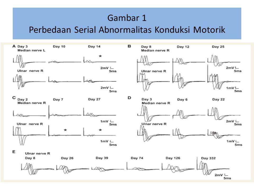 Gambar 1 Perbedaan Serial Abnormalitas Konduksi Motorik