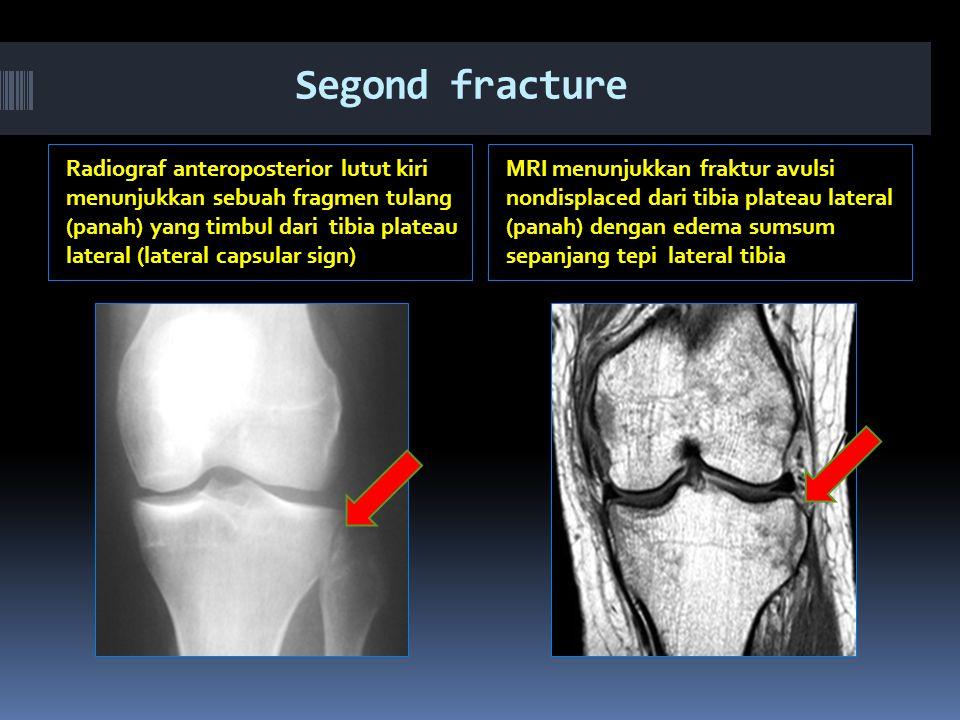 Segond fracture Radiograf anteroposterior lutut kiri menunjukkan sebuah fragmen tulang (panah) yang timbul dari tibia plateau lateral (lateral capsular sign) MRI menunjukkan fraktur avulsi nondisplaced dari tibia plateau lateral (panah) dengan edema sumsum sepanjang tepi lateral tibia