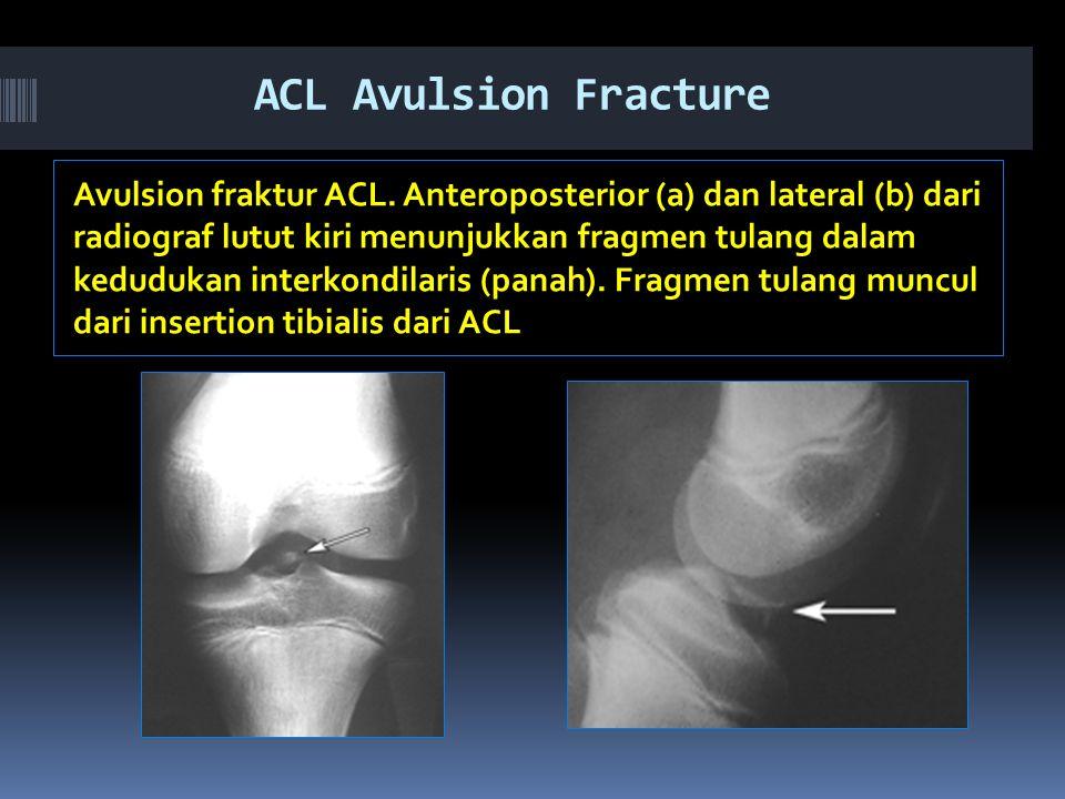 ACL Avulsion Fracture Avulsion fraktur ACL.