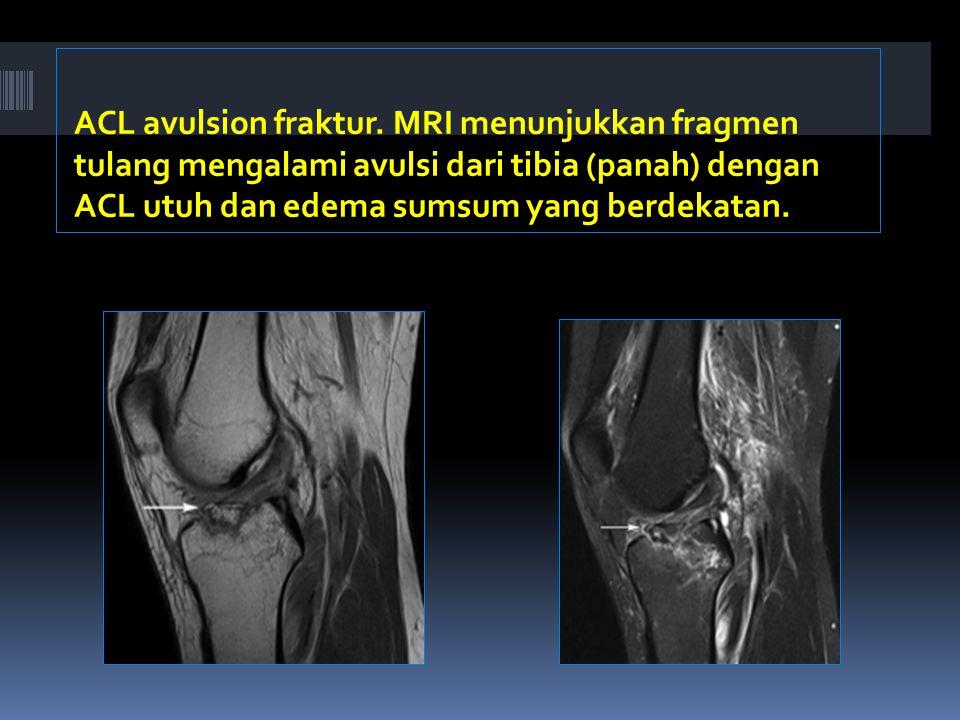 ACL avulsion fraktur.