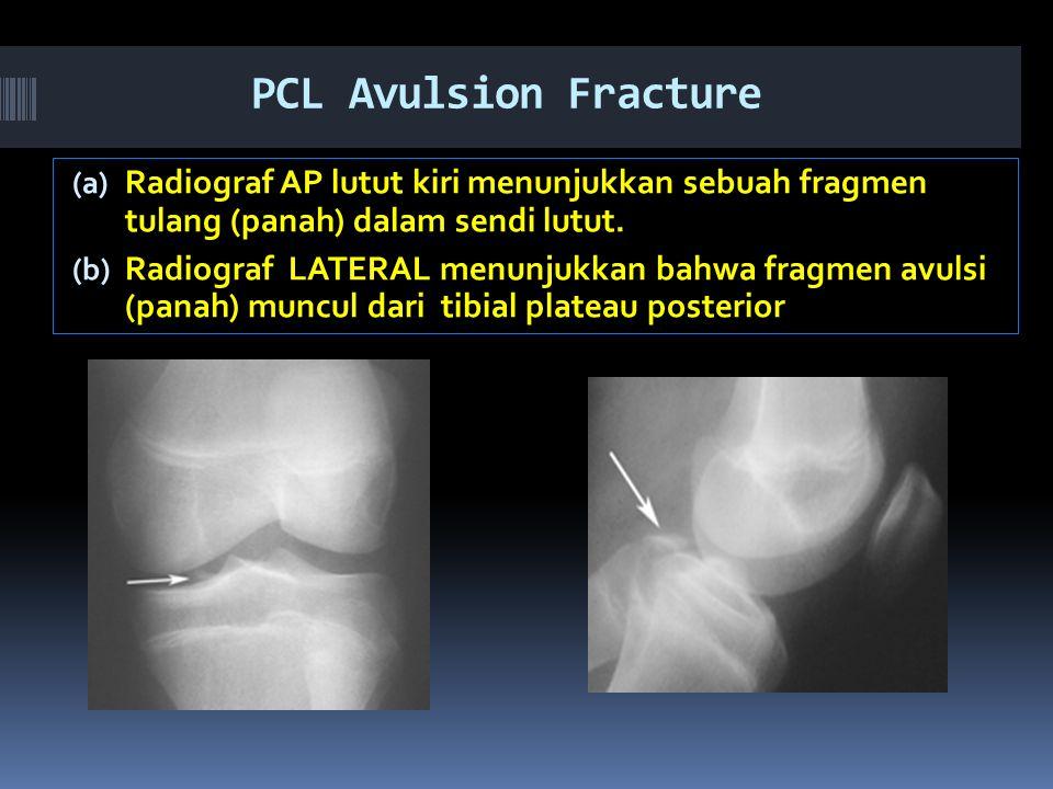 PCL Avulsion Fracture (a) Radiograf AP lutut kiri menunjukkan sebuah fragmen tulang (panah) dalam sendi lutut.