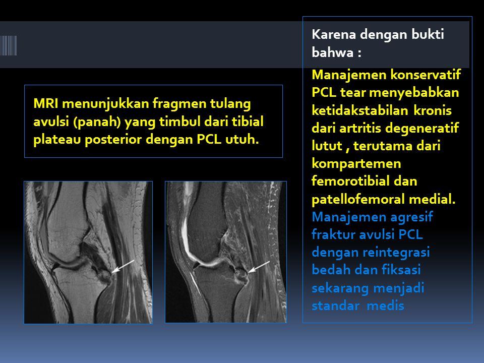 MRI menunjukkan fragmen tulang avulsi (panah) yang timbul dari tibial plateau posterior dengan PCL utuh.