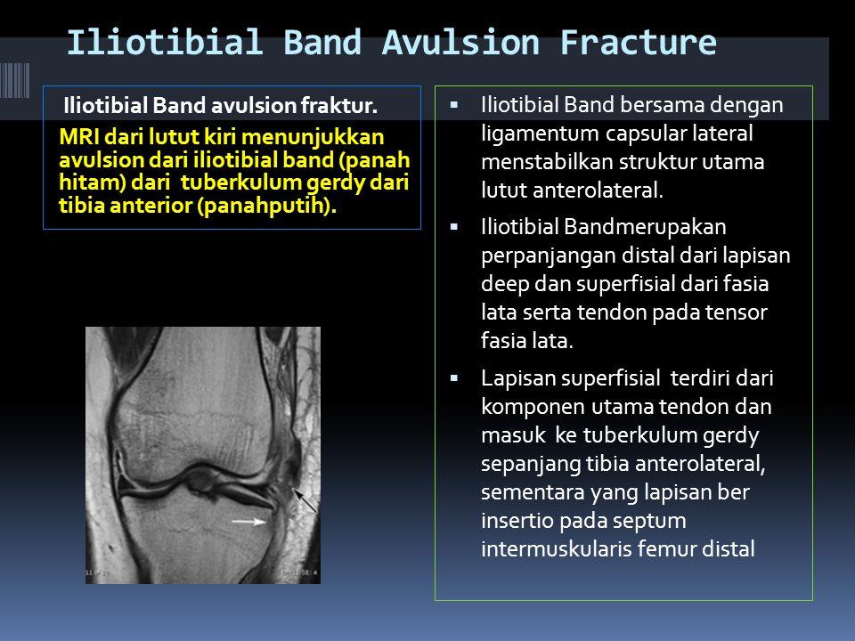 Iliotibial Band Avulsion Fracture Iliotibial Band avulsion fraktur.