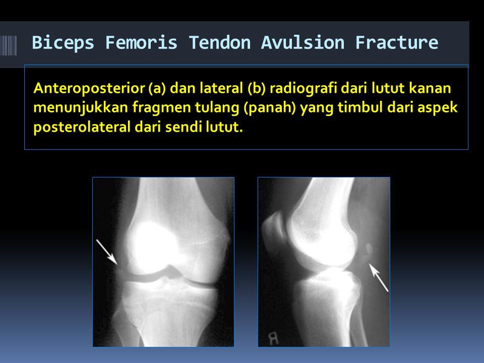 Biceps Femoris Tendon Avulsion Fracture Anteroposterior (a) dan lateral (b) radiografi dari lutut kanan menunjukkan fragmen tulang (panah) yang timbul dari aspek posterolateral dari sendi lutut.