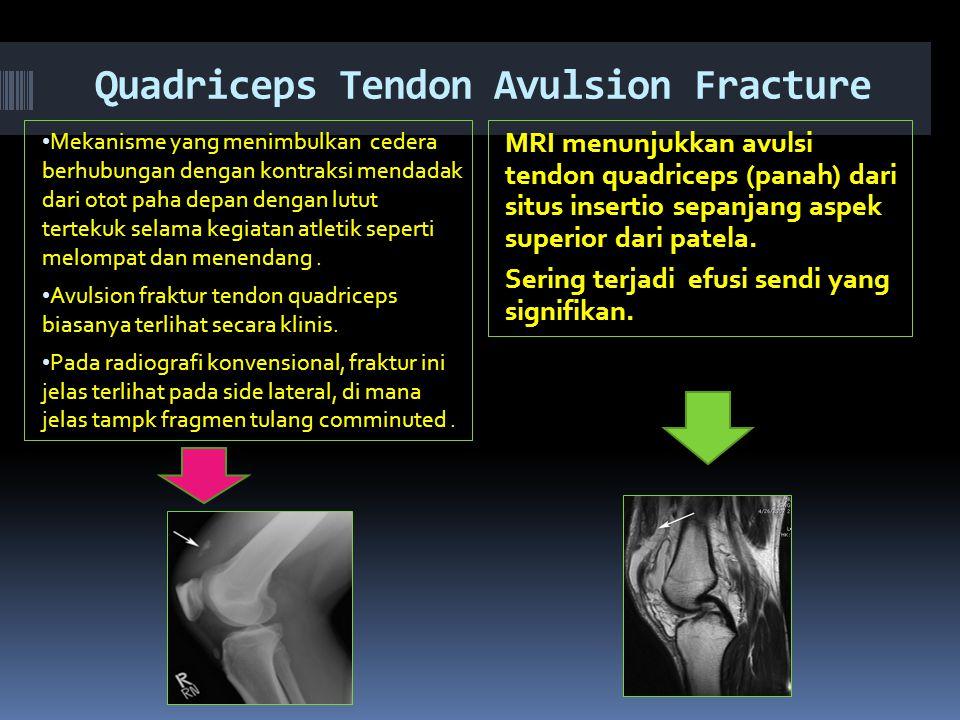 Quadriceps Tendon Avulsion Fracture Mekanisme yang menimbulkan cedera berhubungan dengan kontraksi mendadak dari otot paha depan dengan lutut tertekuk selama kegiatan atletik seperti melompat dan menendang.