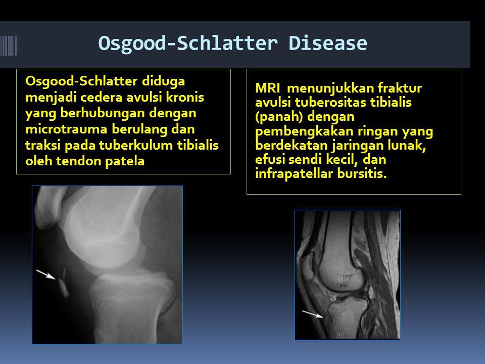 Osgood-Schlatter Disease Osgood-Schlatter diduga menjadi cedera avulsi kronis yang berhubungan dengan microtrauma berulang dan traksi pada tuberkulum tibialis oleh tendon patela MRI menunjukkan fraktur avulsi tuberositas tibialis (panah) dengan pembengkakan ringan yang berdekatan jaringan lunak, efusi sendi kecil, dan infrapatellar bursitis.