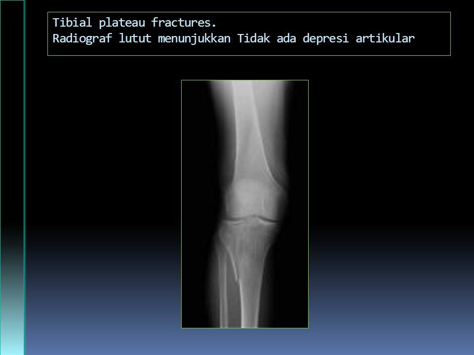 Tibial plateau fractures. Radiograf lutut menunjukkan Tidak ada depresi artikular