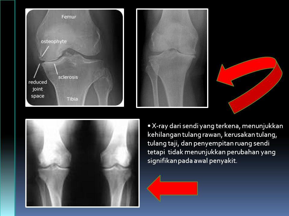 X-ray dari sendi yang terkena, menunjukkan kehilangan tulang rawan, kerusakan tulang, tulang taji, dan penyempitan ruang sendi tetapi tidak menunjukkan perubahan yang signifikan pada awal penyakit.