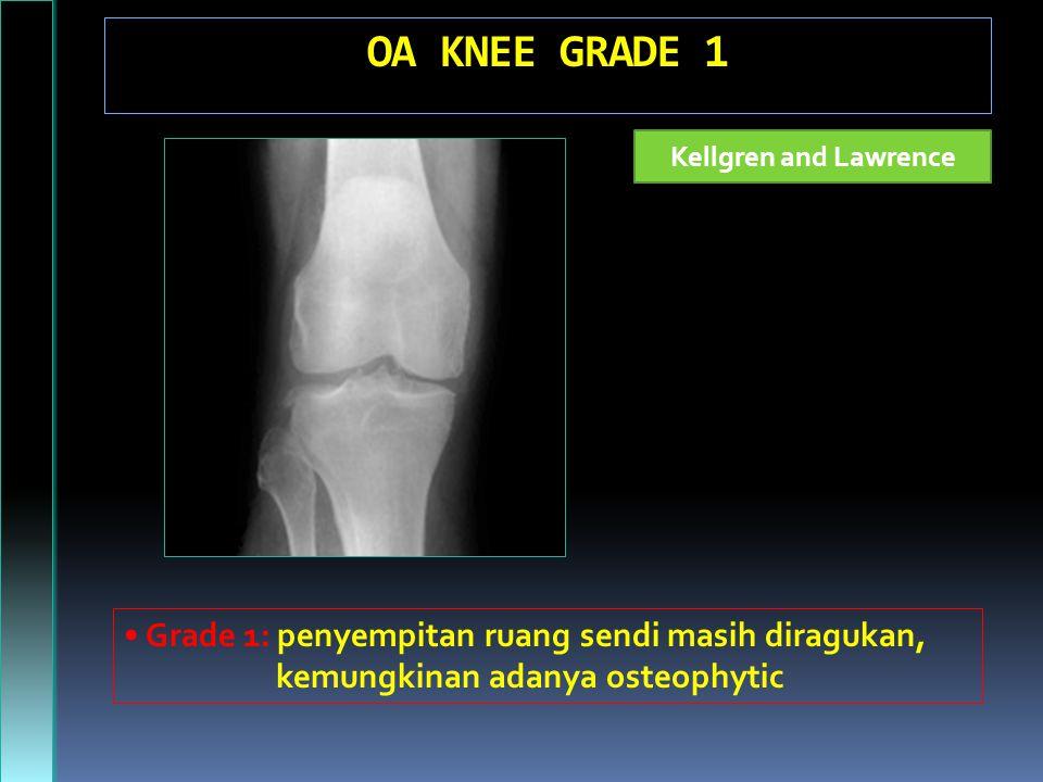 OA KNEE GRADE 1 Kellgren and Lawrence Grade 1: penyempitan ruang sendi masih diragukan, kemungkinan adanya osteophytic