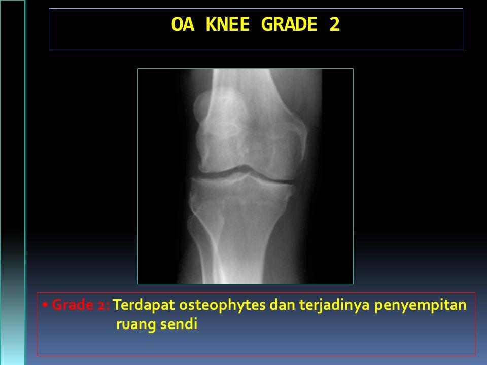 OA KNEE GRADE 2 Grade 2: Terdapat osteophytes dan terjadinya penyempitan ruang sendi