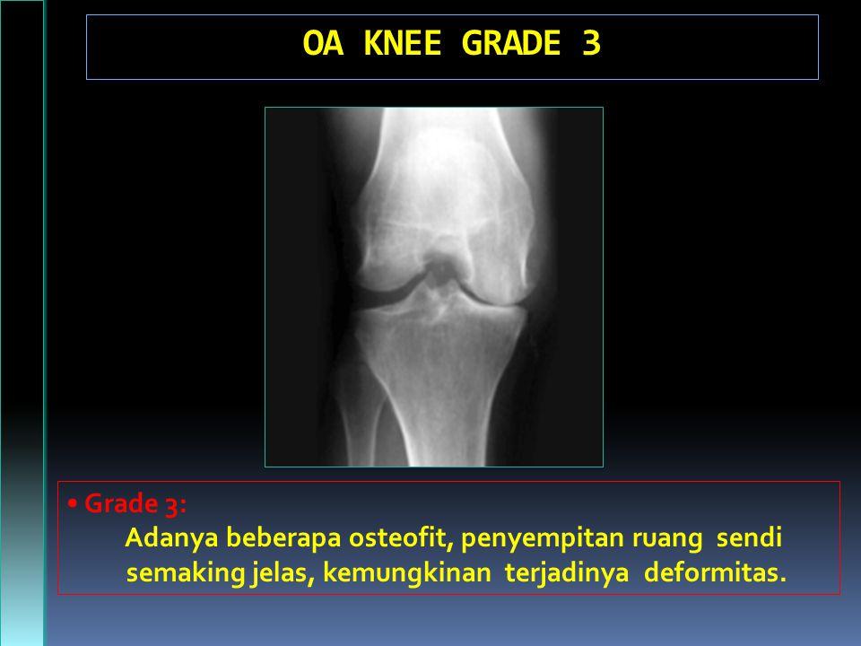 OA KNEE GRADE 3 Grade 3: Adanya beberapa osteofit, penyempitan ruang sendi semaking jelas, kemungkinan terjadinya deformitas.